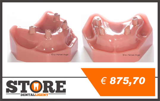 Upper Jaw with 4 Implants and 4 abutments in Pink PEEK