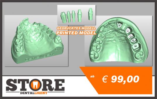 OK-Modell D1-gedruckt aus Kunststoff mit 5 herausnehmbaren Stümpfen.