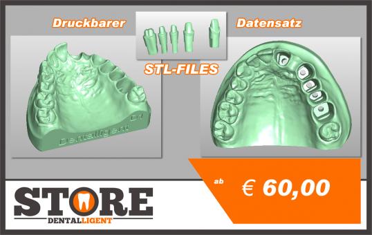 OK-Model D1-STL-Files for self-print