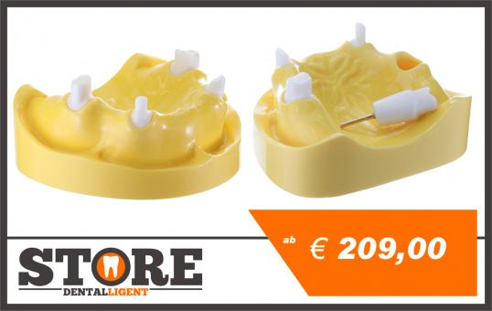 Demo-Modell aus gegossenem Acryl mit herausnehmbaren Stümpfen 13,16,23,26