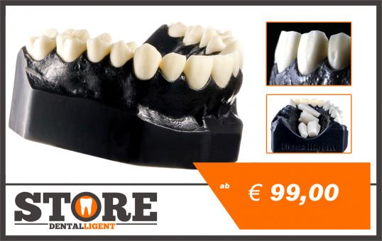 DEMO Modell PS1 - OK mit 14 anatomischen, herausnehmbaren Zähnen