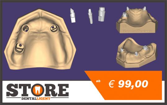 OK-Modell T3-gedruckt aus Kunststoff mit 3 herausnehmbaren Stümpfen.